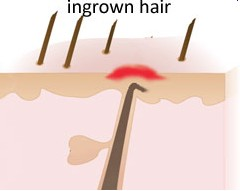 hairingrown